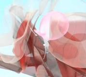 Embedded thumbnail for Mini Cinta para Incontinencia Urinaria Con Anestesia local